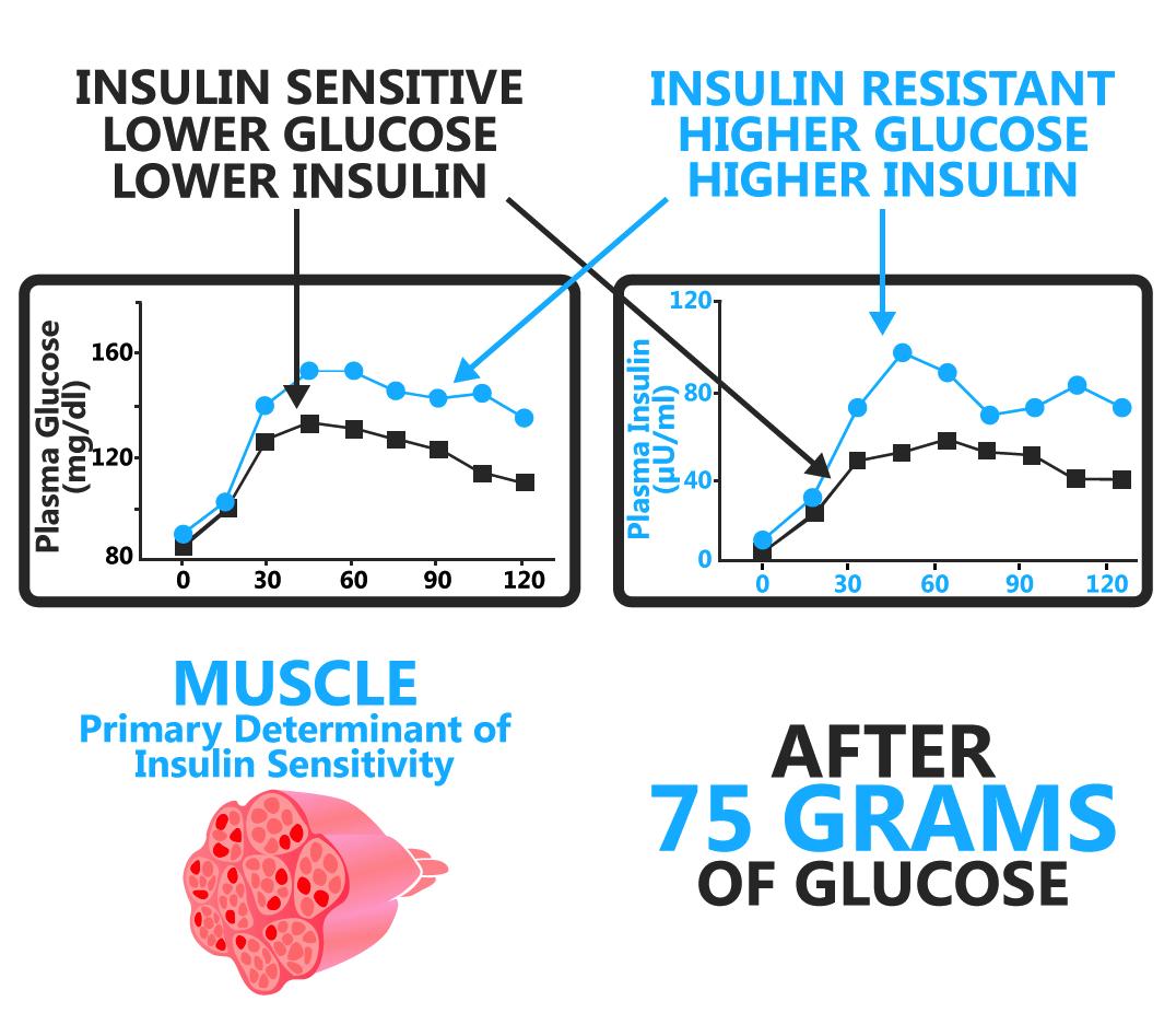 what-is-insulin-sensitivity